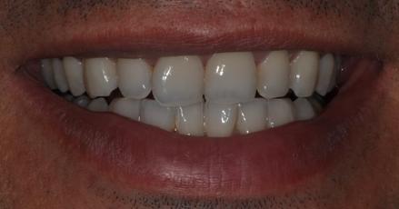 Éclaircissement dentaire Après
