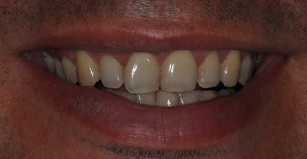 Éclaircissement dentaire Avant