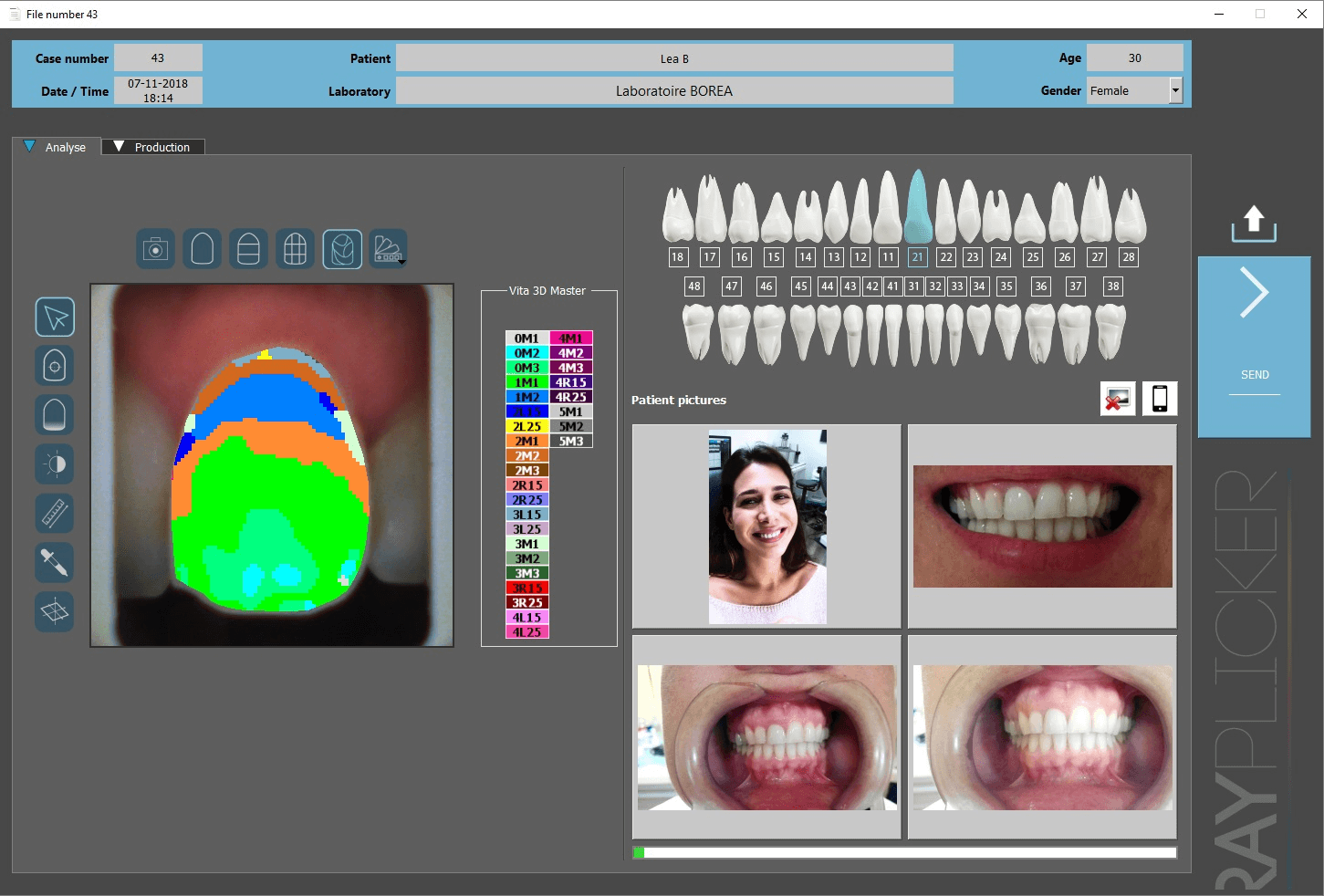 Scanner intra-oral