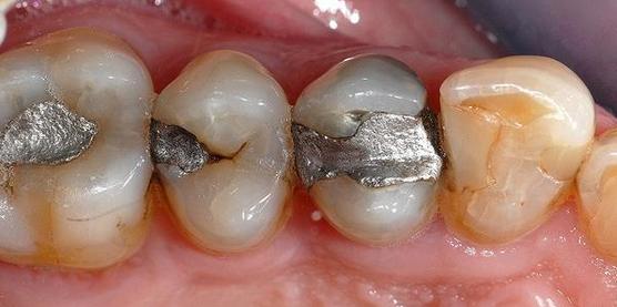 Remplacement amalgames anciens par composites et onlay Avant