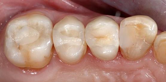 Remplacement amalgames anciens par composites et onlay Après